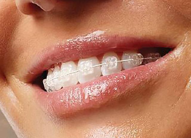 Cum functioneaza aparatele dentare?